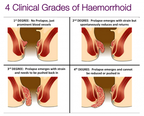 Clinical Grades of Haemorrhoids or Piles